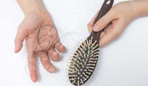 Wypadanie włosów – sprawdzone metody na zagęszczanie włosów