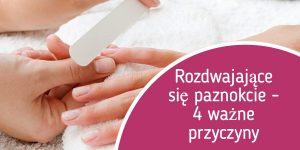 Rozdwajające się paznokcie – 4 ważne przyczyny