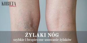 Żylaki nóg – szybkie i bezpieczne usuwanie żylaków